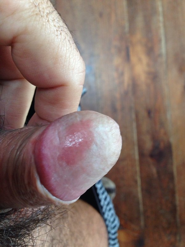 Genital_psoriasis_penis_ICD_10_L40.1_First_Derm