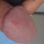 Black Marks On Penis 49