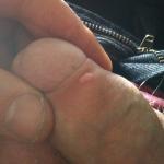 Bout de peau qui dpasse de l'anus - Hmorrodes - FORUM