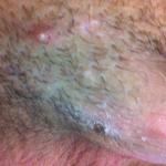 Folliculitis penis 2