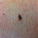 malignant melanoma on back
