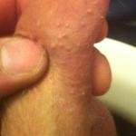 Molluscum lesion 3