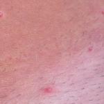 Molluscum lesion 2